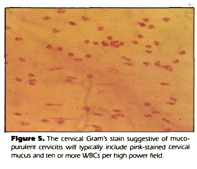 Figure 5. The cervical Grams stain suggestive of mucopurulent cervicitis will typically include pink-stained cervical mucus and ten or more WBCs per high power field.