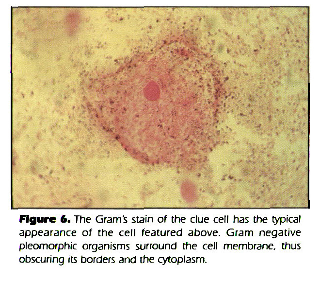 Figure 6. The Gram's stain of the clue cell has the typical appearance of the cell featured above. Gram negative pleomorphic organisms surround the cell membrane, thus obscuring its borders and the cytoplasm.