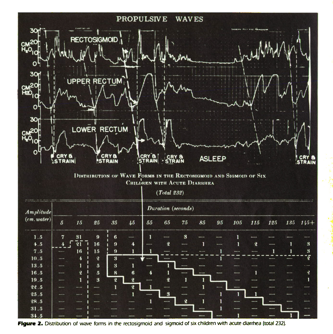 Figure 2. Distribution of wave forms in the rectosigmoid and sigmoid of six children with acute diarrhea (total 232).