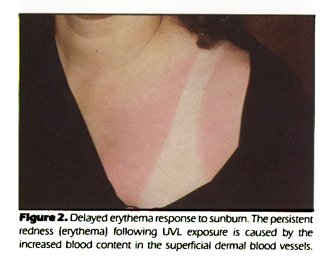 Figure 2. Delayed erythema response to sunburn. The persistent redness (erythema) following UVL exposure is caused by the increased blood content in the superficial dermal blood vessels.