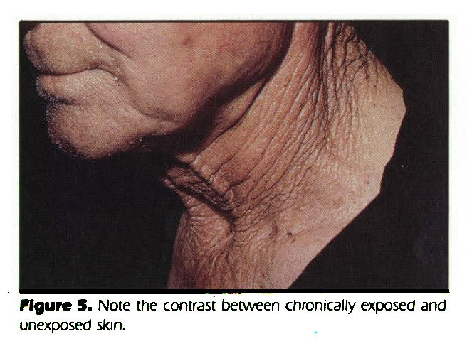 Figure 5. Note the contrast between chronically exposed and unexposed skin.