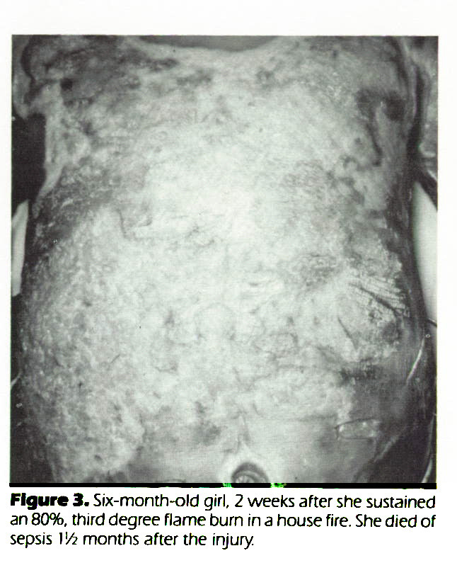 Figure 3. Six-month-old girl, 2 weeks after she sustained an 80%, third degree flame burn in a house fire. She died of sepsis Il¿ months after the injury