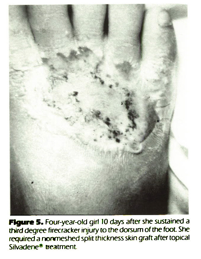 Figure 5. Four-year-old girl IO days after she sustained a third degree firecracker injury to the dorsum of the foot She required a nonmeshed split thickness skin graft after topical Silvadene* treatment.