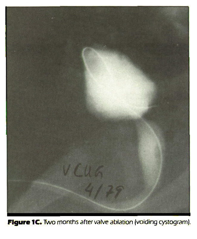 Figure 1C. Two months after valve ablation (voiding cystogram).