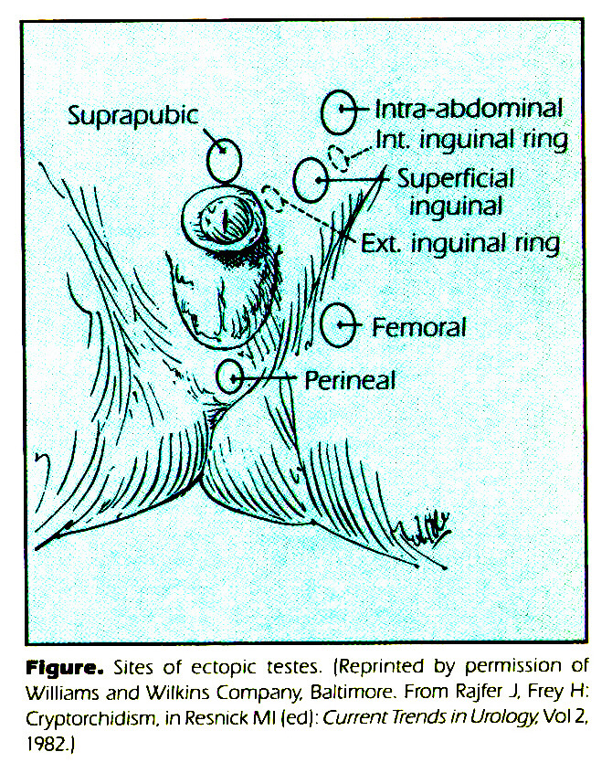 Figure. Sites of ectopic testes. (Reprinted by permission of Williams and Wilkins Company, Baltimore. From Rajfer J. Frey H: Cryptorchidism, in Resnick Ml fed): Current Trends in Urology, Vol 2, 1982.)