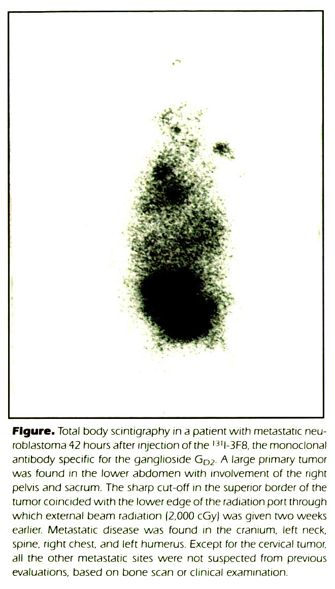 Figure. Total body scintigraphy in a patient with metastatic neuroblastoma 42 hours after injection of the l3ll-3F8. the monoclonal antibody specific for the ganglioside GD2. A large primary tumor was found in the lower abdomen with involvement of the right pelvis and sacrum. The sharp cut-off in the superior border of the tumor coincided with the lower edge of the radiation port through which external beam radiation (2,000 cGy) was given two weeks earlier. Metastatic disease was found in the cranium, left neck, spine, right chest, and left humerus. Except for the cervical tumor, all the other metastatic sites were not suspected from previous evaluations, based on bone scan or clinical examination.