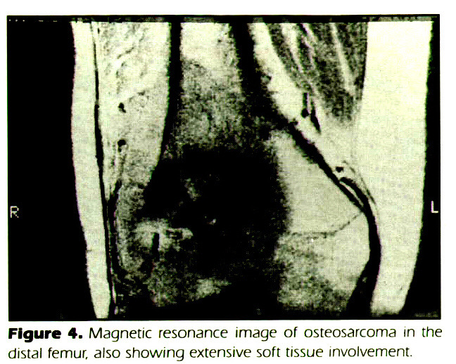 Figure 4. Magnetic resonance image of osteosarcoma in the distal femur, also showing extensive soft tissue involvement.