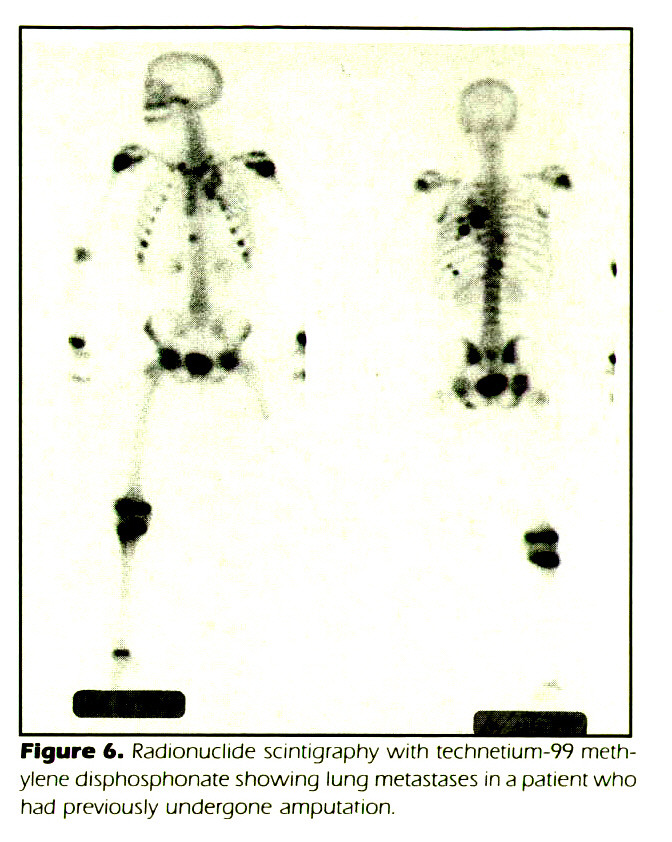 Figure 6. Radionuclide scintigraphy with technetium-99 methylene disphosphonate showing lung metastases in a patient who had previously undergone amputation.