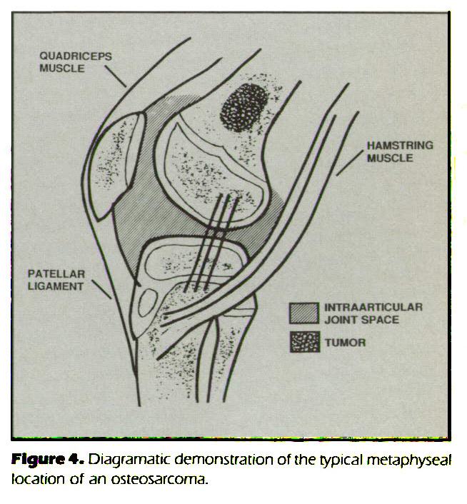 Figure 4. Diagramatic demonstration of the typical metaphyseal location of an osteosarcoma.