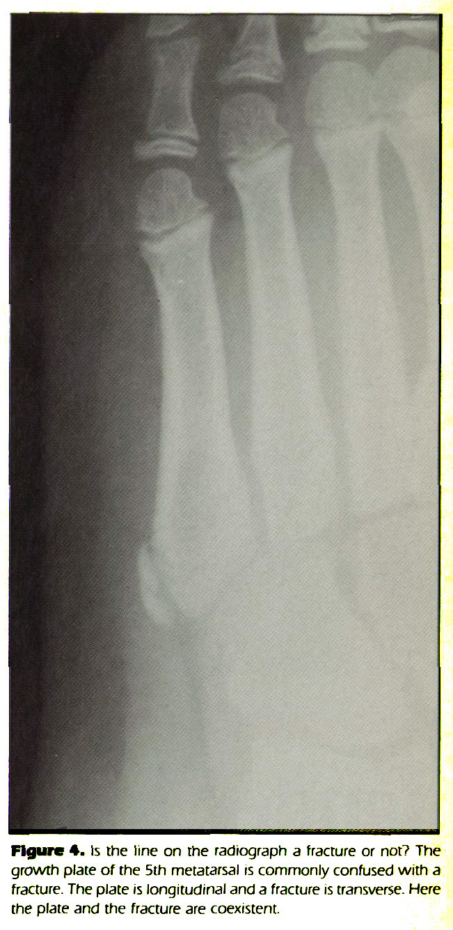 Figure 4. Is the line on the radiograph a fracture or not? The growth plate of the 5th metatarsal is commonly confused with a fracture. The plate is longitudinal and a fracture is transverse. Here the plate and the fracture are coexistent.