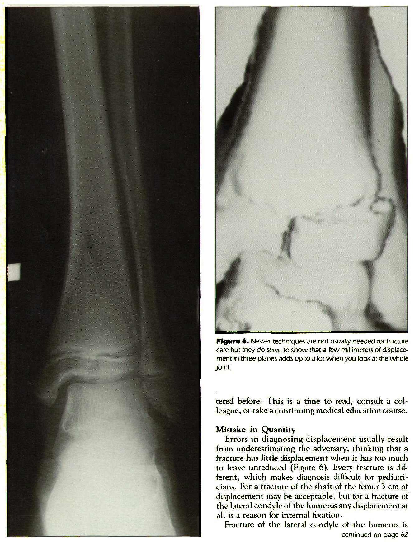 Figure 6. Newer techniques are not usually needed for fracture care but they do serve to show that a few millimeters of displacement in three planes adds up to a lot when you look at the whole joint.