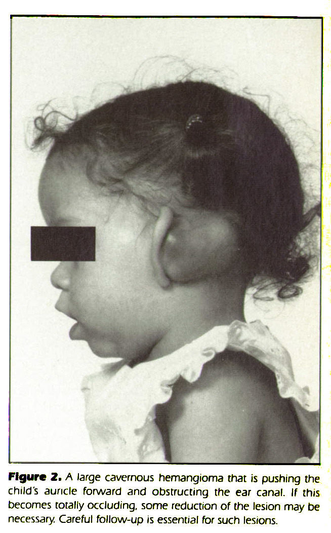 Figure 2. A large cavernous hemangioma that is pushing the child's auricle forward and obstructing the ear canal. If this becomes totally occluding, some reduction of the lesion may be necessary. Careful follow-up is essential for such lesions.