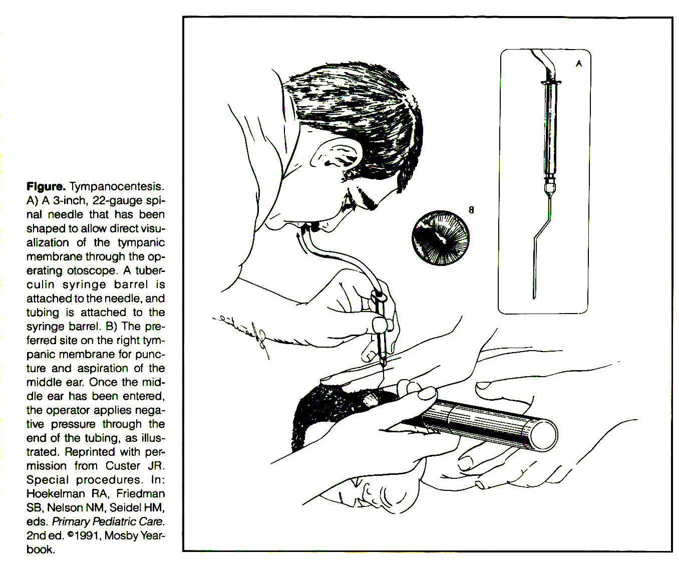 Figure. Tympanocentesis. A) A 3-inch, 22-gauge spinal needle that has been shaped to allow direct visualization of the tympanic membrane through the operating otoscope. A tuberculin syringe barrel is attached to the needle, and tubing is attached to the syringe barrel. B) The preferred site on the right tympanic membrane for puncture and aspiration of the middle ear. Once the middle ear has been entered, the operator applies negative pressure through the end of the tubing, as illustrated. Reprinted with permission from Custer JR. Special procedures. In: Hoekelman RA, Fnedman SB, Nelson NM, Seidel HM, eds. Primary Pediatrie Care. 2nd ed. ©1991 , Mosby Yearbook.