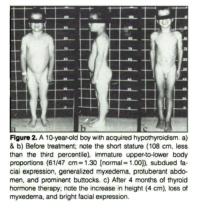 Figure 2. A 10-year-old boy with acquired hypothyroidism. a) & b) Before treatment; note the short stature (108 cm, less than the third percentile), immature upper-to-lower body proportions 61/47 cm = 1.30 [normal= 1.0O]), subdued facial expression, generalized myxedema, protuberant abdomen, and prominent buttocks, c) After 4 months of thyroid hormone therapy; note the increase in height 4 cm), loss of myxedema, and bright facial expression.