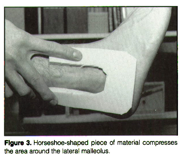 Figure 3. Horseshoe-shaped piece of material compresses the area around the lateral malleolus.