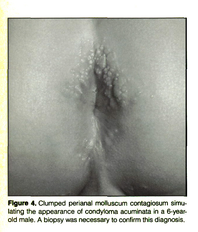 Figure 4. Clumped perianal molluscum contagiosum simulating the appearance of condyloma acuminata in a 6-yearold male. A biopsy was necessary to confirm this diagnosis.