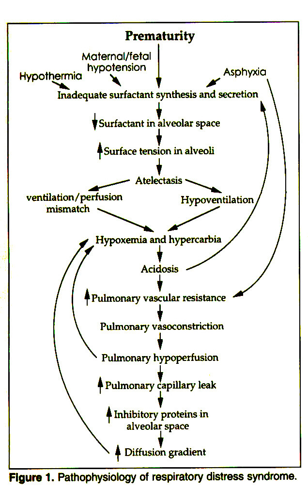 Figure 1. Pathophysiology of respiratory distress syndrome.