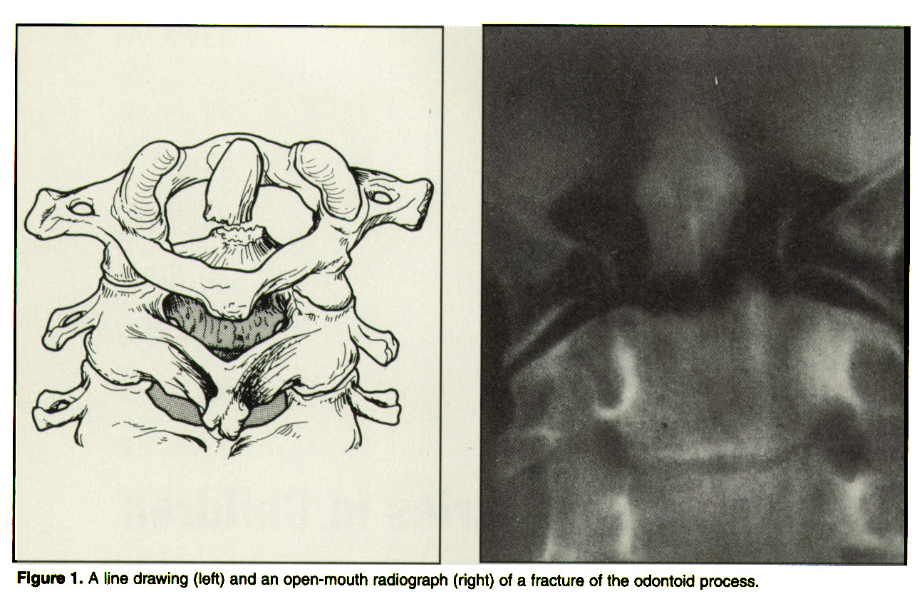 Figure 1. A line drawing (left) and an open-mouth radiograph (right) of a fracture of the odontoid process.