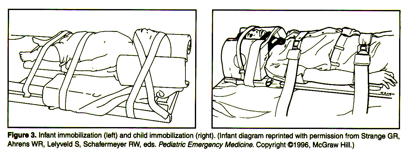 Figure 3. Infant immobilization (left) and child immobilization (right). (Infant diagram reprinted with permission from Strange GR, Anrens WR1 Lelyveld S, Schafermeyer RW, eds. Pediatrie Emergency Medicine. Copyright ©1996, McGraw Hill.)