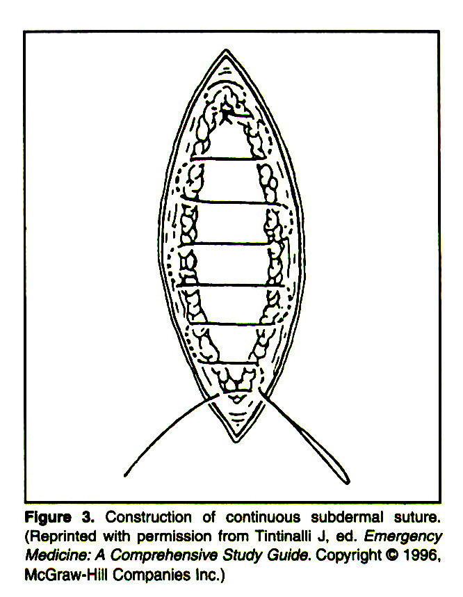 Figure 3. Construction of continuous subdermal suture. (Reprinted with permission from Tintinalli J, ed. Emergency Medicine: A Comprehensive Study Guide. Copyright © 1 996, McGraw-Hill Companies Inc.)