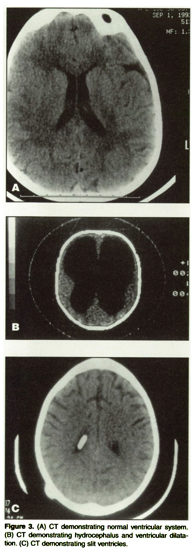 Figure 3. (A) CT demonstrating normal ventricular system. (B) CT demonstrating hydrocephalus and ventricular dilatation. (C) CT demonstrating slit ventricles.