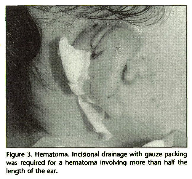 Figure 3. Hematoma. Incisional drainage with gauze packing was required for a hematoma involving more than half the length of the ear.