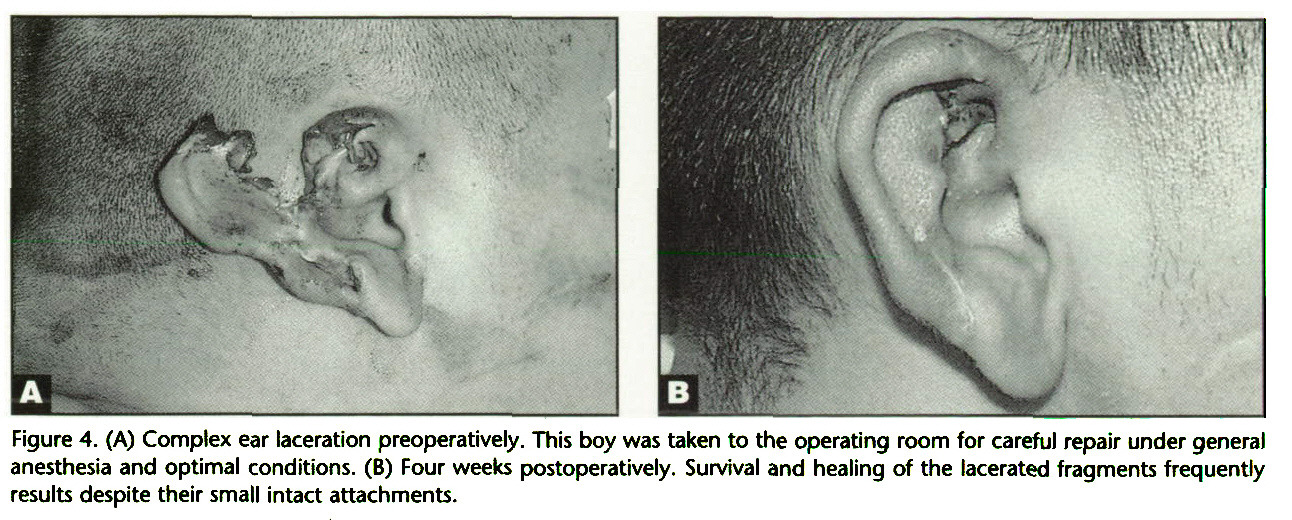 Figure 4. (A) Complex ear laceration preoperatively. This boy was taken to the operating room for careful repair under general anesthesia and optimal conditions. (B) Four weeks postoperatively. Survival and healing of the lacerated fragments frequently results despite their small intact attachments.