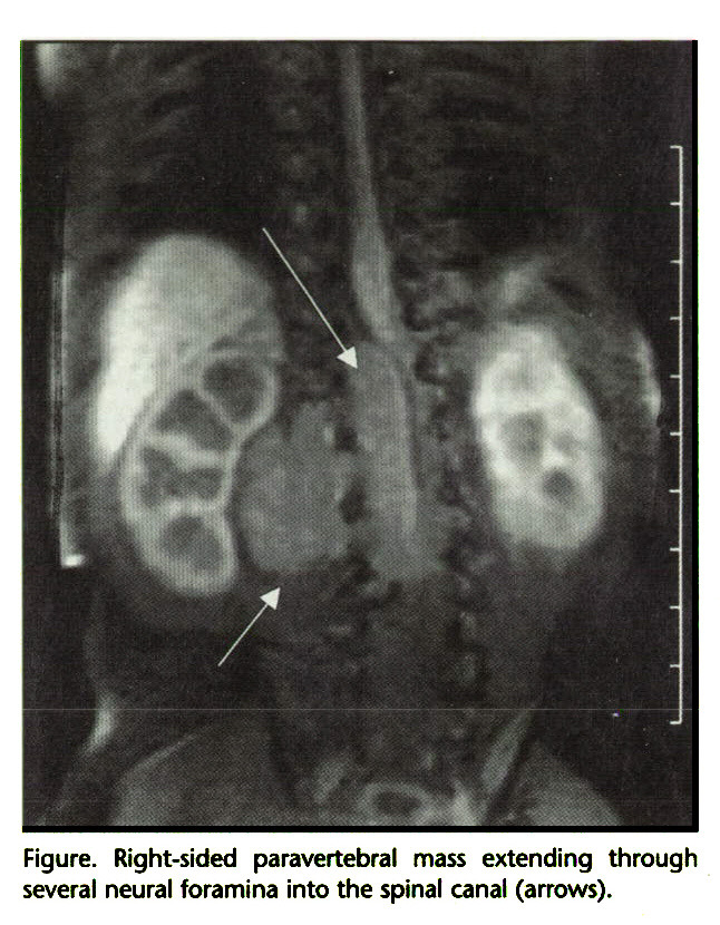 Figure. Right-sided paravertebral mass extending through several neural foramina into the spinal canal (arrows).