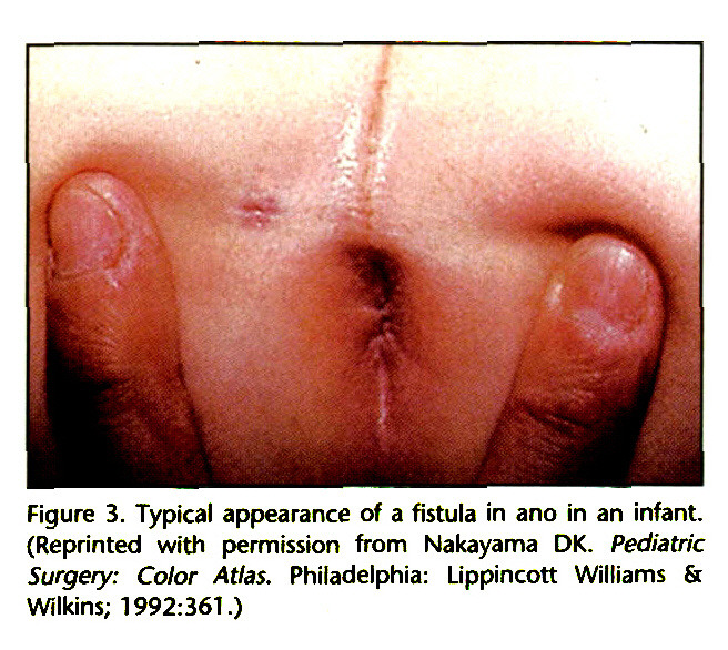 Figure 3. Typical appearance of a fistula in ano in an infant. (Reprinted with permission from Nakayama DK. Pediatric Surgery: Color Atlas. Philadelphia: Lippincott Williams Sc Wilkins; 1992:361.)