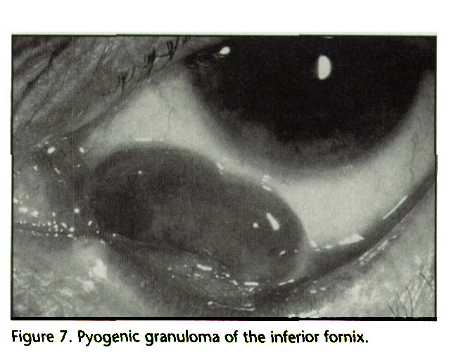 Figure 7. Pyogenic granuloma of the inferior fornix.