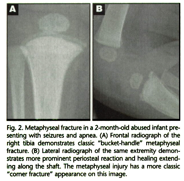 """Fig. 2. Metaphyseal fracture in a 2-month-old abused infant presenting with seizures and apnea. (A) Frontal radiograph of the right tibia demonstrates classic """"bucket-handle"""" metaphyseal fracture. (B) Lateral radiograph of the same extremity demonstrates more prominent periosteal reaction and healing extending along the shaft. The metaphyseal injury has a more classic """"comer fracture"""" appearance on this image."""