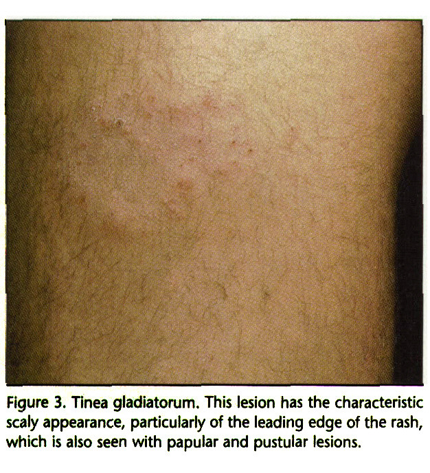 Figure 3. Tinea gladiatorum. This lesion has the characteristic scaly appearance, particularly of the leading edge of the rash, which is also seen with papular and pustular lesions.