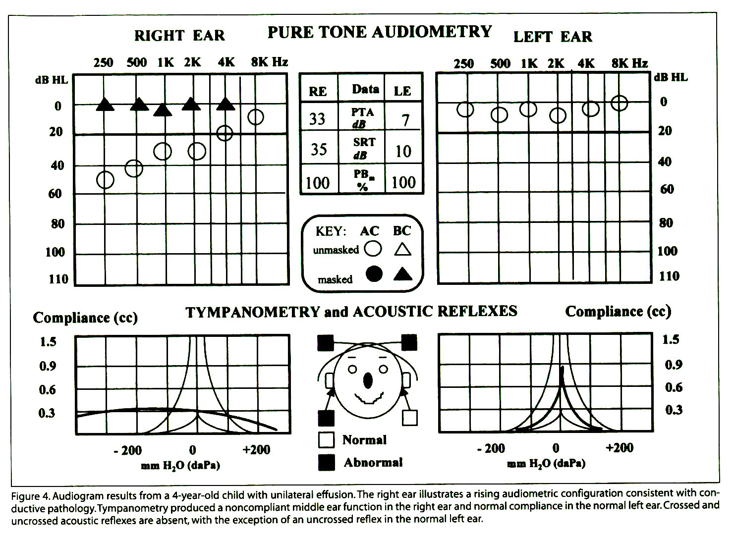 Figure 4. Audiogram results from a 4-year-old child with unilateral effusion.The right ear illustrates a rising audiometrie configuration consistent with conductive pathology. Tympanometry produced a noncompliant middle ear function in the right ear and normal compliance in the normal left ear. Crossed and uncrossed acoustic reflexes are absent, with the exception of an uncrossed reflex in the normal left ear.