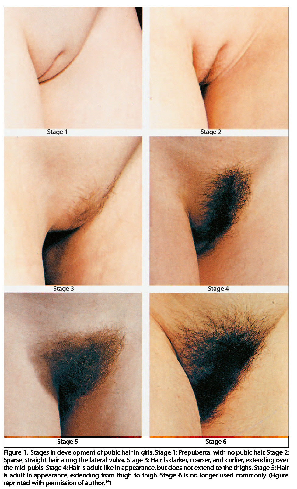 Different types of hairy pussy