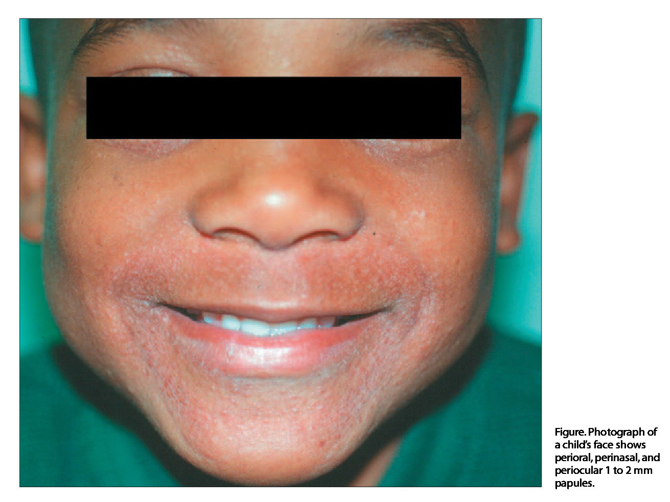 Figure. Photograph of a child's face shows perioral, perinasal, and periocular 1 to 2 mm papules.