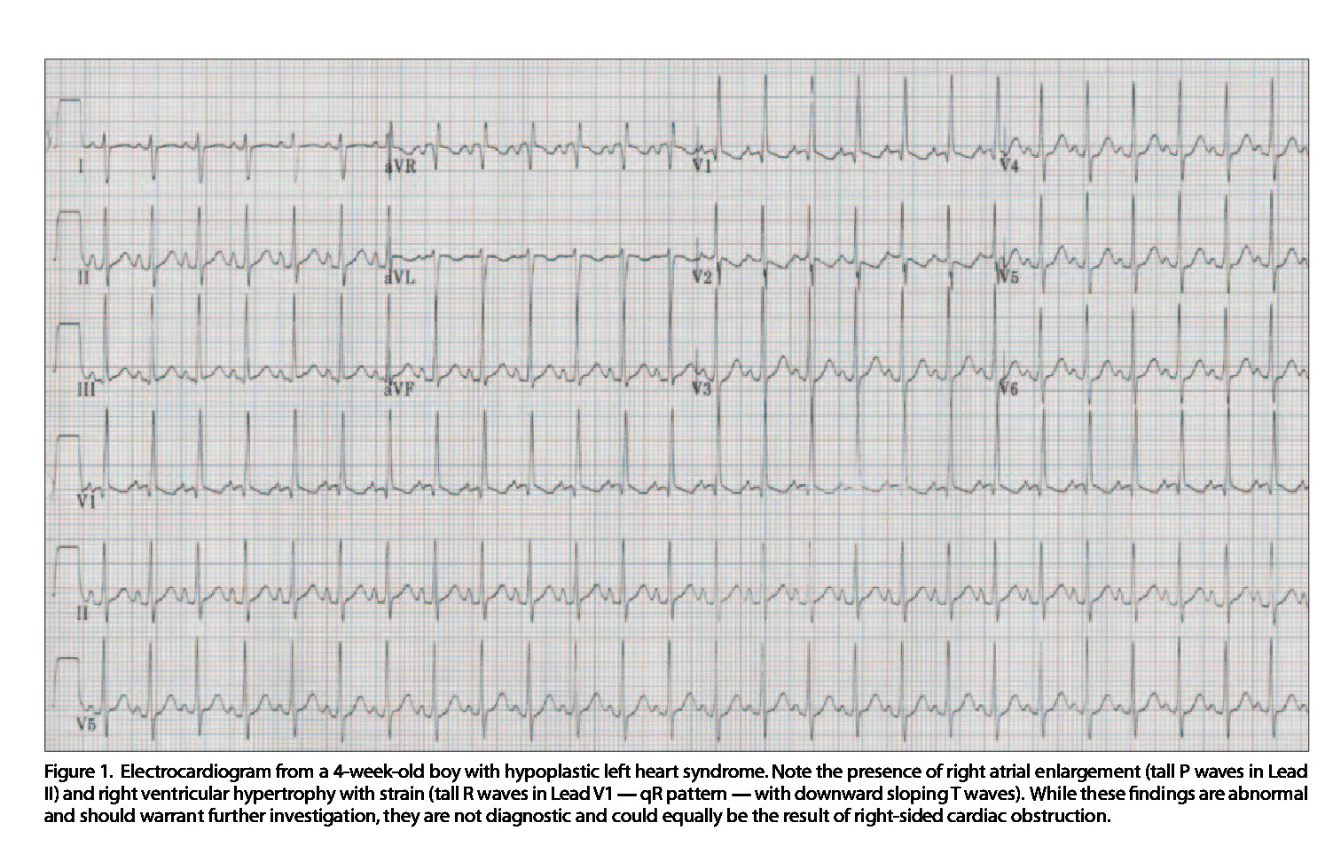 Figure 1. Electrocardiogram from a 4-week-old boy with hypoplastic left heart syndrome. Note the presence of right atrial enlargement (tall P waves in Lead II) and right ventricular hypertrophy with strain (tall Rwavesin Lead V1 - qR pattern - with downward sloping T waves). While these findings areabnormal and should warrant further investigation, they are not diagnostic and could equally be the result of right-sided cardiac obstruction.