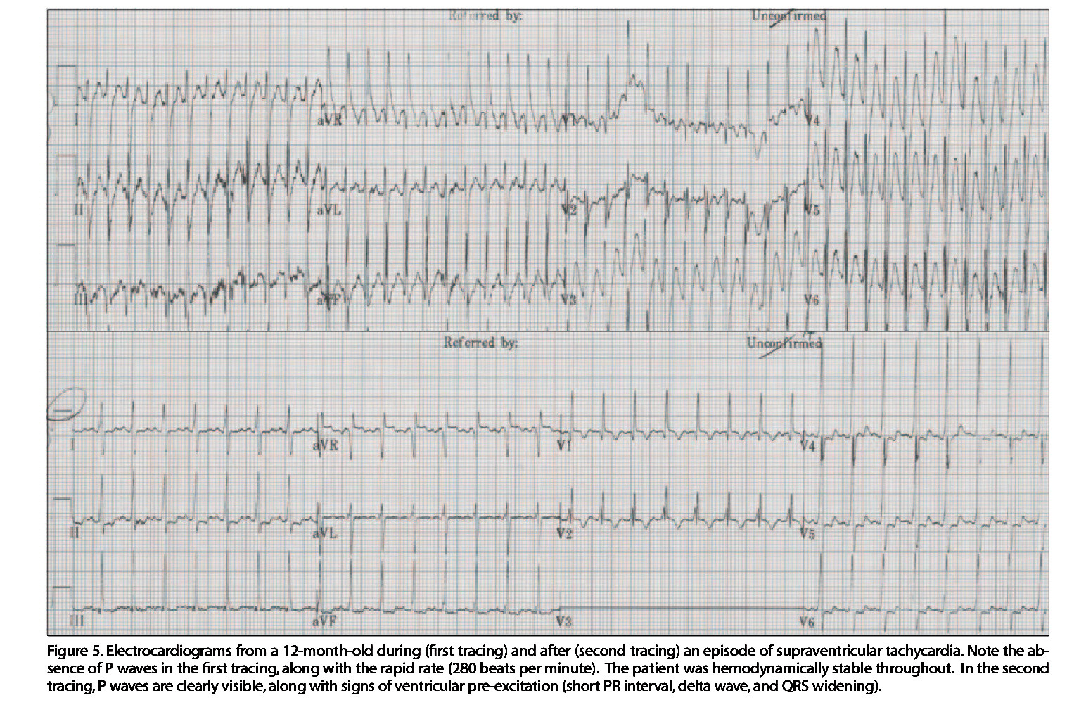 Figure 5. Electrocardiograms from a 12-month-old during (first tracing) and after (second tracing) an episode of supraventricular tachycardia. Note the absence of P waves in the first tracing, along with the rapid rate (280 beats per minute). The patient was hemodynamically stable throughout. In the second tracing, P waves are clearly visible, along with signs of ventricular preexcitation (short PR interval, delta wave, and QRS widening).