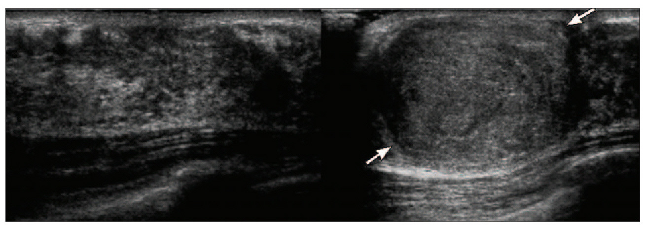 Figure 1a (above). Split screen image reveals the normal echotexture of the right breast, with a rounded hypoechoic mass (arrows) in the left breast.
