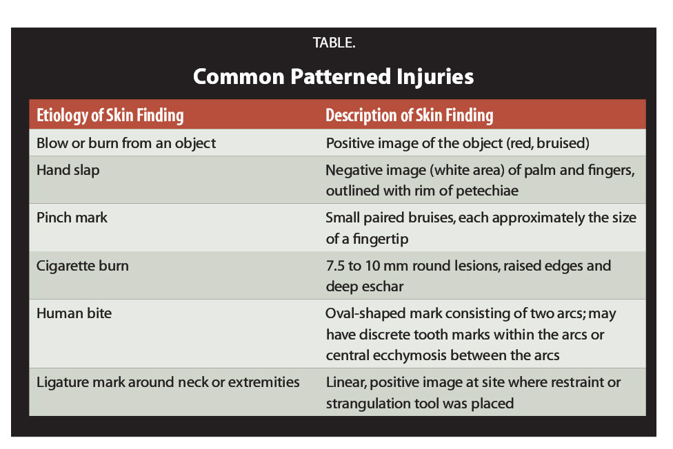 TABLE.Common Patterned Injuries