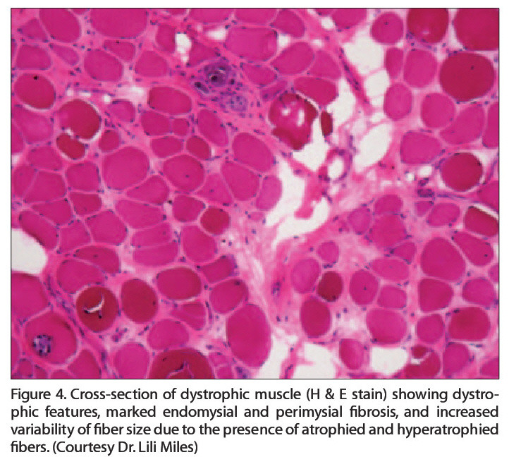Figure 4. Cross-section of dystrophic muscle (H & E stain) showing dystrophic features, marked endomysial and perimysial f?brosis, and increased variability of fiber size due to the presence of atrophied and hyperatrophied fibers. (Courtesy Dr. Lili Miles)