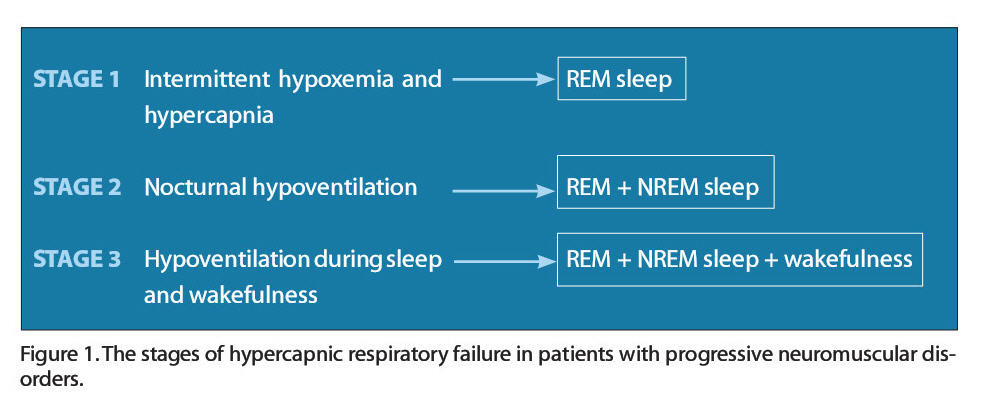 Figure 1 .The stages of hypercapnic respiratory failure in patients with progressive neuromuscular disorders.