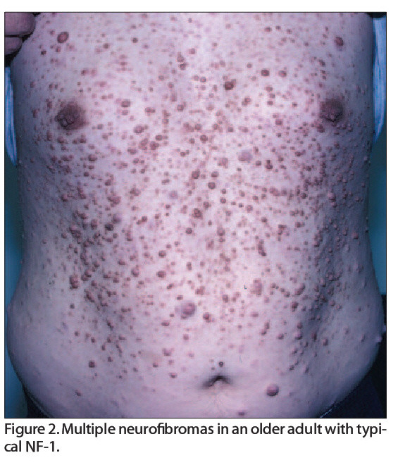 Figure 2. Multiple neurofibromas in an older adult with typical NF-I.