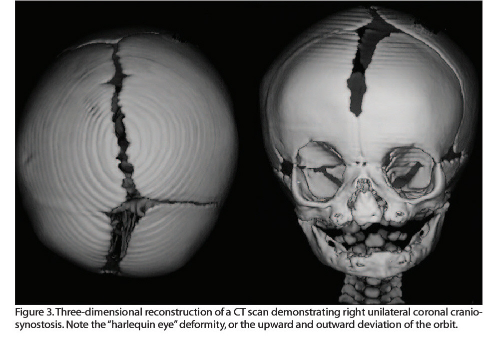 """Figure 3. Three-dimensional reconstruction of a CT scan demonstrating right unilateral coronal craniosynostosis. Note the """"harlequin eye"""" deformity, or the upward and outward deviation of the orbit."""