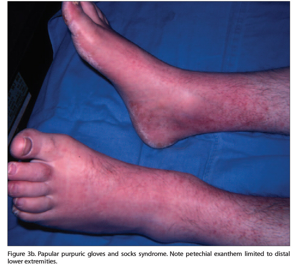 Figure 3b. Papular purpuric gloves and socks syndrome. Note petechial exanthem limited to distal lower extremities.