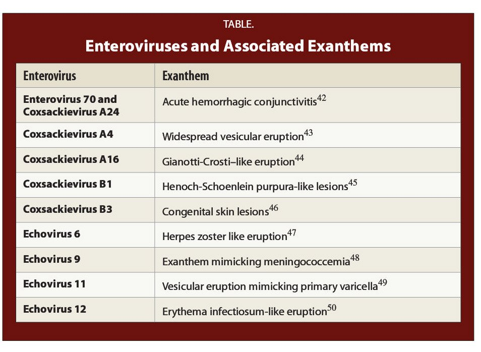 TABLE.Enteroviruses and Associated Exanthems