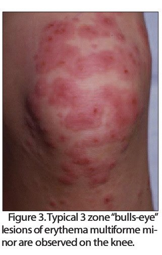 """Rgure S.Typical 3 zone """"bulls-eye"""" lesions of erythema multiforme minorare observed on the knee."""