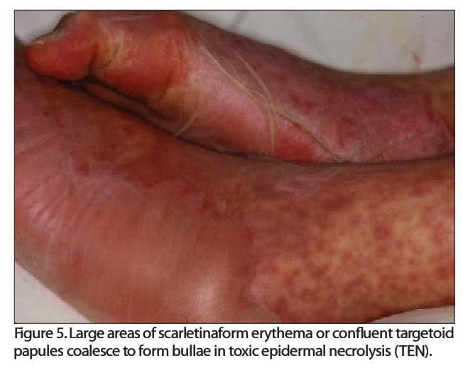 figure 5. Large areas of scartetinaform erythema or confluent targetoid papules coalesce to form bullae in toxic epidermal necrolysis (TEN).