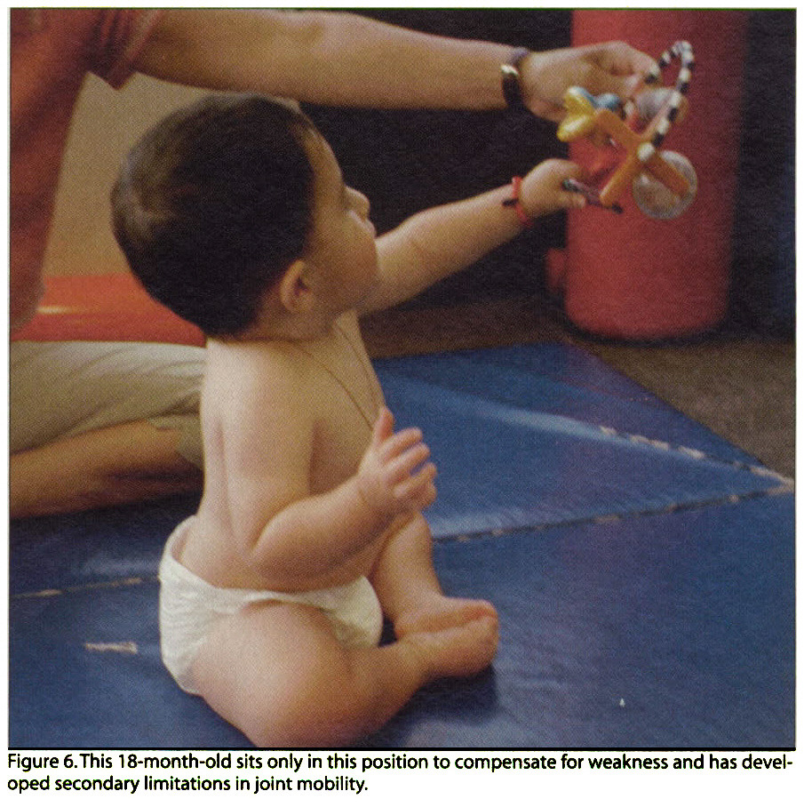 Figure 6. This 18-month-old sits only in this position to compensate for weakness and has developed secondary limitations in joint mobility.