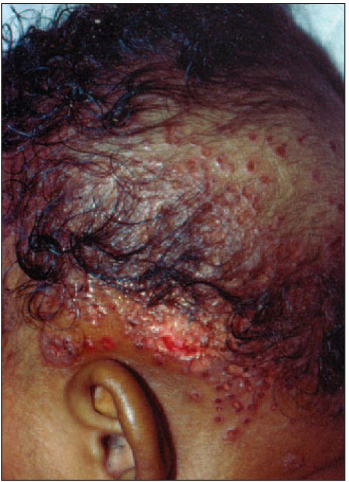 Eczema Herpeticum on the Scalp of an 11-Month-Old Boy with Atopic Dermatitis. The Diaper Area Was also Involved. DFA Was Positive for HSV, and the Infant Responded Well to IV Acyclovir. Courtesy of Richard Antaya, MD.