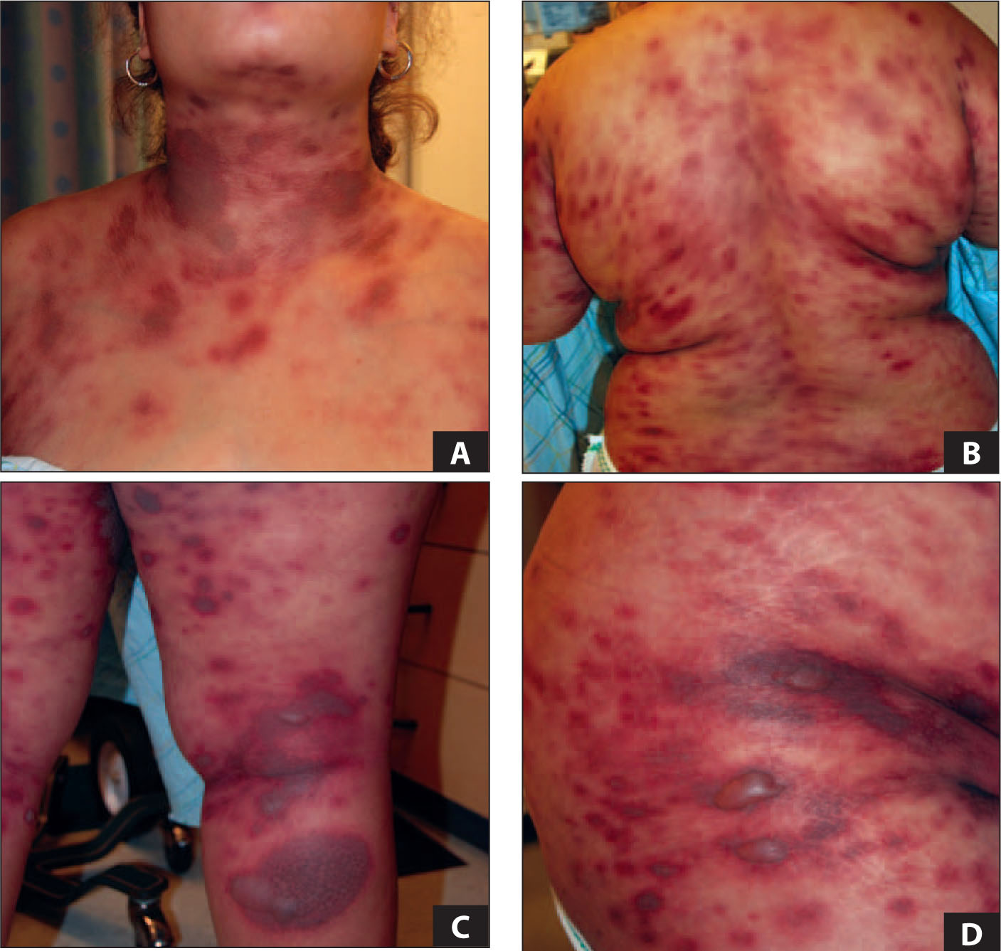 An 18-Year-Old Female Developed SJS/TEN During Treatment with TMP/Sulfa. Widespread Painful, Purpuric Patches Developed on the Trunk and Extremities. Soon After, Bullae Developed from Necrosis and Skin Detachment, and Ulceration. She Responded Well to Discontinuation of TMP/sulfa, Early Short Course with Oral Prednisone, and Subsequent IVIG. Images Courtesy of Mary Wu Chang, MD.